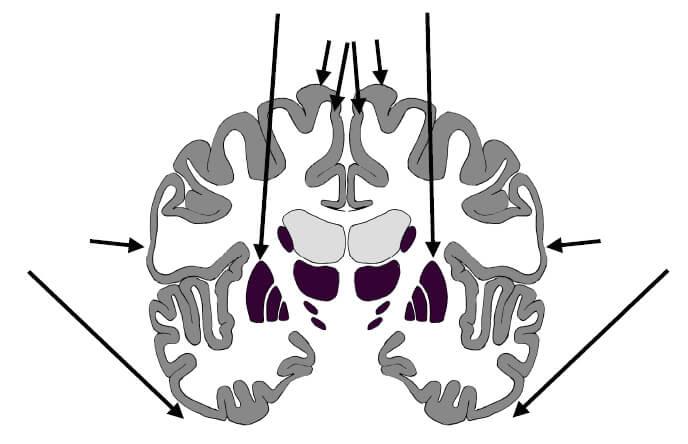 Ilustração de detalhe do cérebro