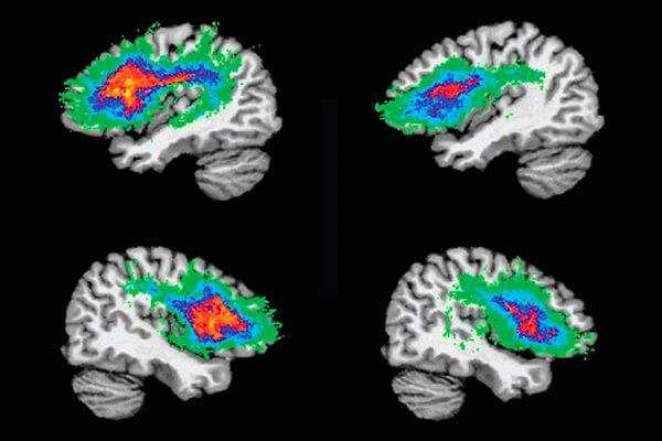 Neuroimagem do cérebro